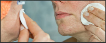 acne-medicine-370x150