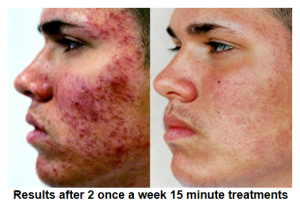 Before & After Using Zapne All-Natural Acne Treatment