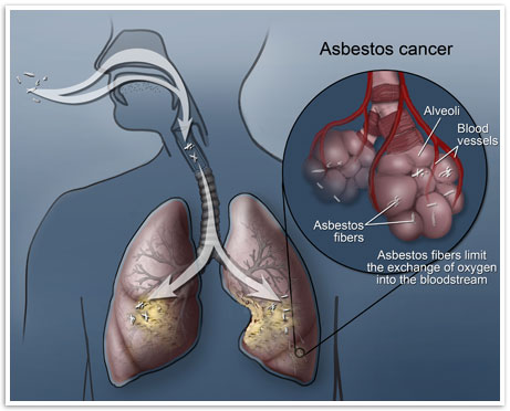 picture of lungs with asbestos cancer